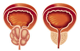 prostata.jpg